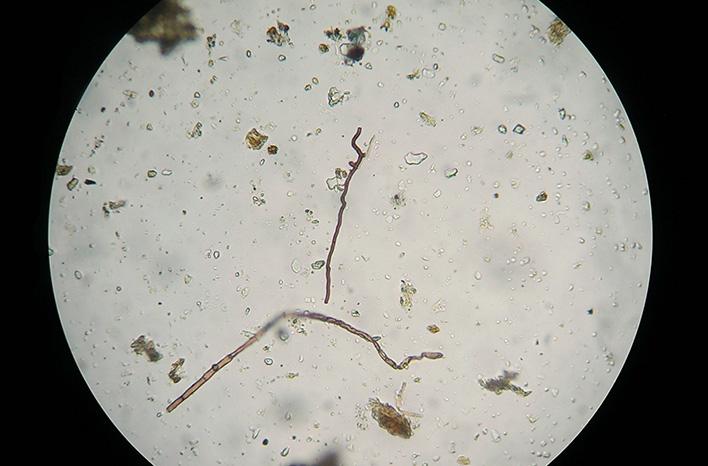 organisms of the soil food web