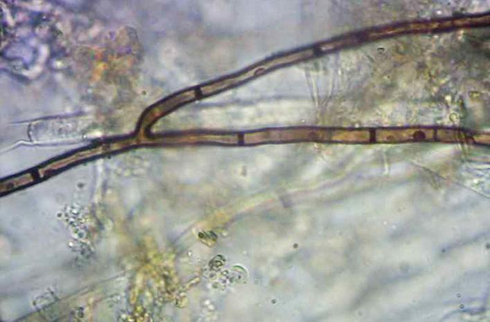 Soil fungus under a microscope